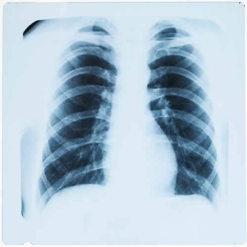 Ispessimenti pleurici e placche pleuriche nelle radiografie del torace