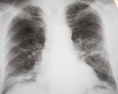 COP BOOP Bronchiolite obliterante polmonite organizzata