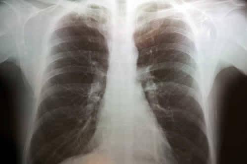 Lastra ed Enfisema Polmonare