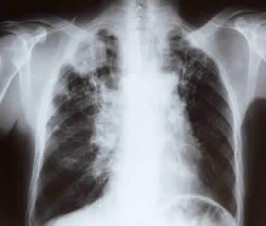 Immagine radiologica di tumore maligno del polmone lastra