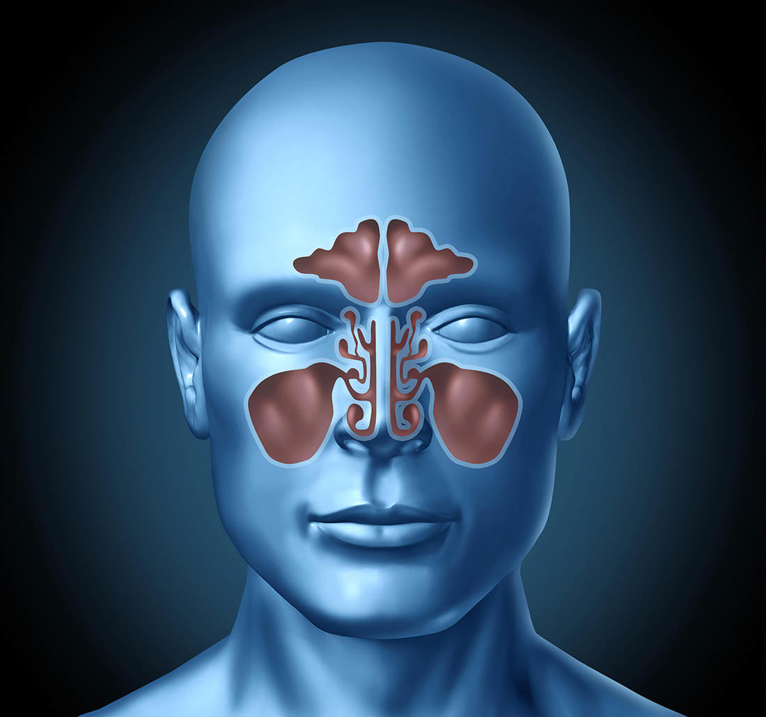 Congestione nasale render 3D