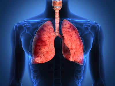 Bronchiectasie e cancro al polmone BPCO