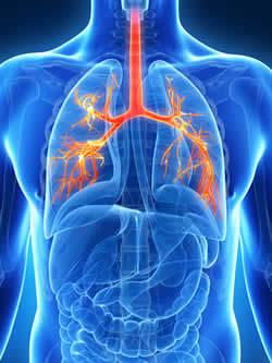bronchite render 3D