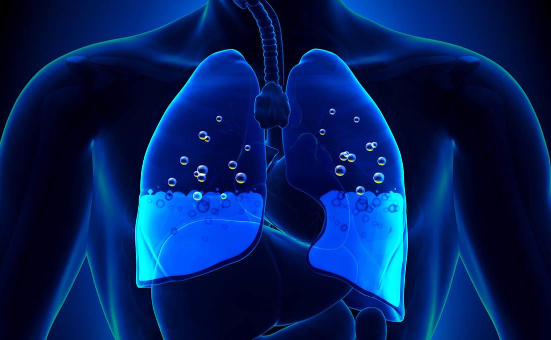 diabetes secondario sintomi polmonite