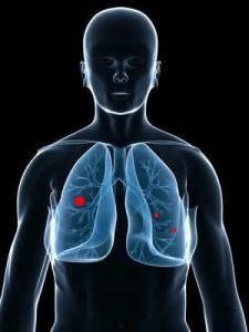 Noduli Polmonari